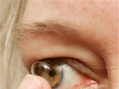 Contact lens which releases drugs into the eye gives new hope to glaucoma sufferers